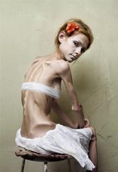Tre milioni di italiani soffrono di disturbi alimentari. A 14 anni i primi segni di anoressia