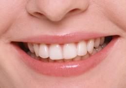 Una cattiva igiene dentale provoca danni al cuore