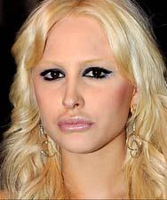 Noemi Letizia peggiorata dalla chirurgia estetica