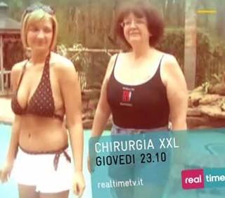 Chirurgia XXL: l'obesità su Real Time