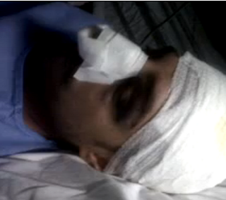 La polizia tortura i manifestanti in Val di Susa?