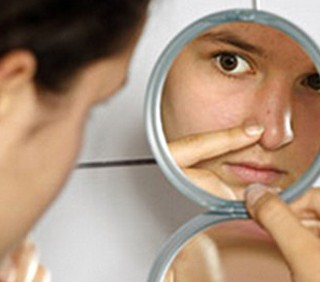 L'acne si combatterà con un virus