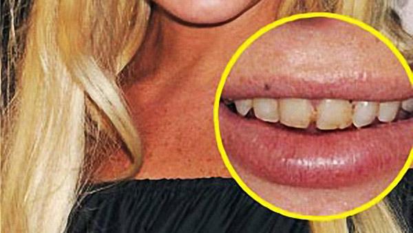 Denti di Lindsay Lohan