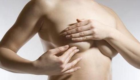 Tutto sul tumore al seno: falsi miti e come prevenirlo