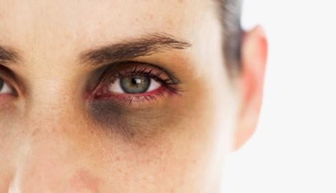Violenza sulle donne, 1 vittima ogni 5