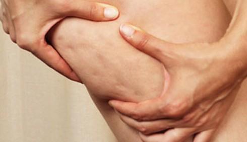 L'alimentazione ideale contro la cellulite