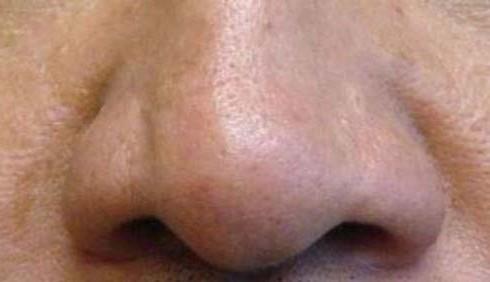 Cellule staminali: a un uomo ricostruito il naso su un braccio