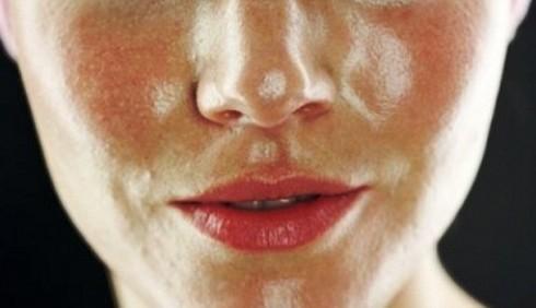 Pelle grassa: le maschere fatte in casa per combatterla