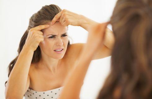 Acne: 3 rimedi naturali