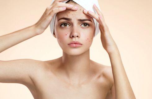 Acne giovanile: cause e rimedi