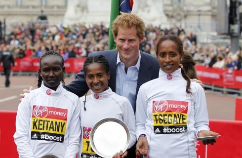 Principe Harry: problemi di calvizie come William