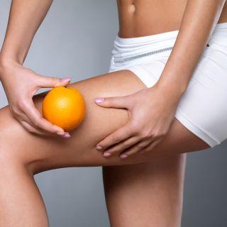 Cellulite: 5 cose da sapere