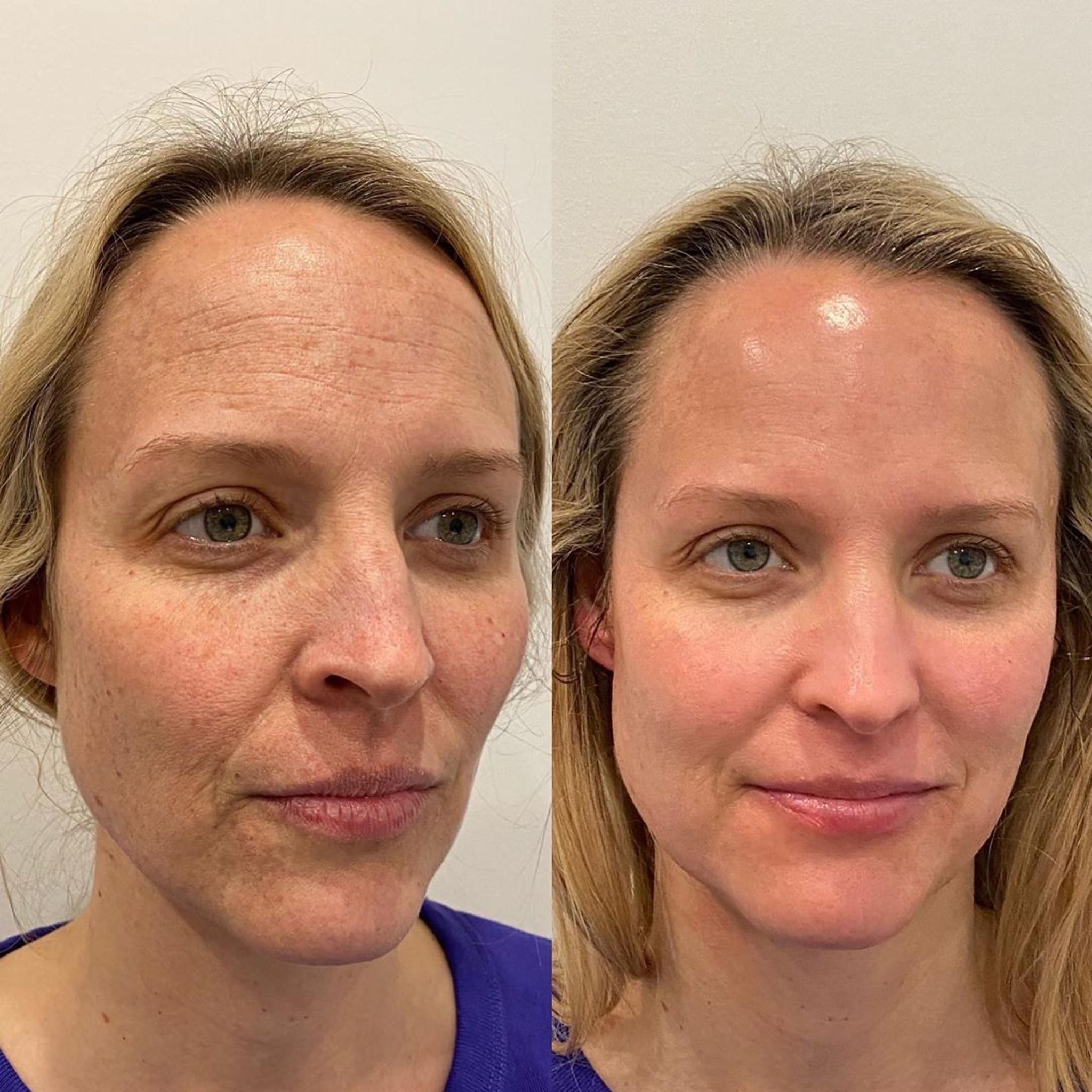 Hydrafacial prima e dopo