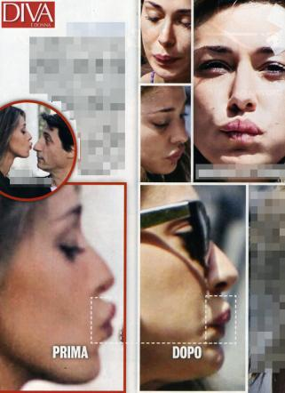 Belen Rodriguez ritocco alle labbra 2