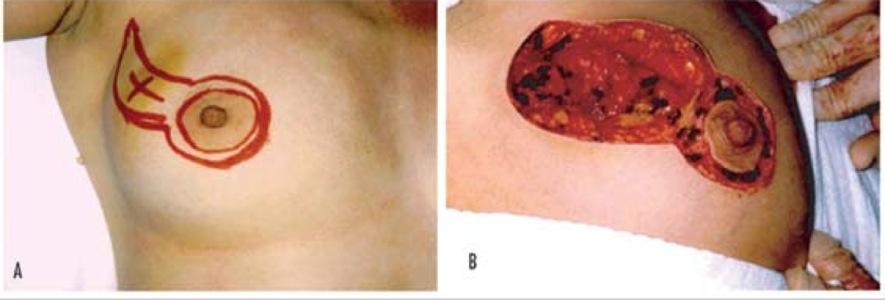 Operazione del petto attraverso capezzoli
